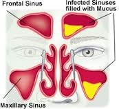 sinusitis0